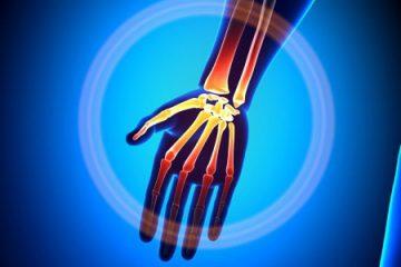 Wrist/hand